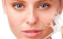 6 Dicas de Remédios Caseiros Para Tirar Manchas da Pele