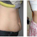 Perda 7 quilos em 7 dias com água limão, gengibre, pepino e hortelã