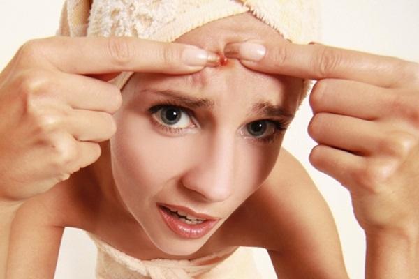Como Acabar Com Espinhas Em 1 Dia: Receitas Caseiras | Saúde ...