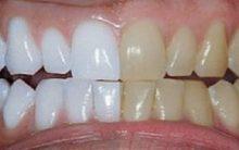 Como Clarear os Dentes Em Apenas 10 Minutos