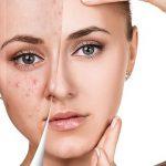 Os 7 Tratamentos Para Tirar Cicatriz de Acne do Rosto