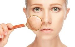 Tratamentos caseiros para elimina manchas na pele