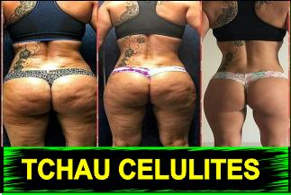 Mulher REVELA Como Fez para ELIMINAR as Malditas Celulites Para Sempre em APENAS 10 dias
